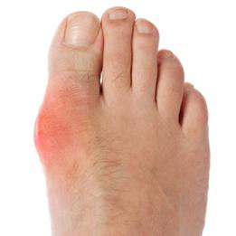 naf-gout-1