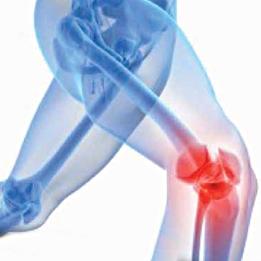 naf-osteoarthritis-1